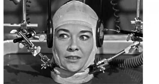 human-head-transplant-1